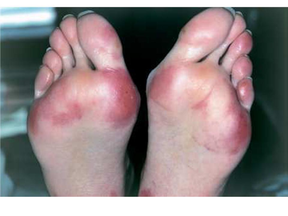 Bonnes Pratiques de Dispensation des anticancéreux oraux - Conseils pour le syndrome main-pied