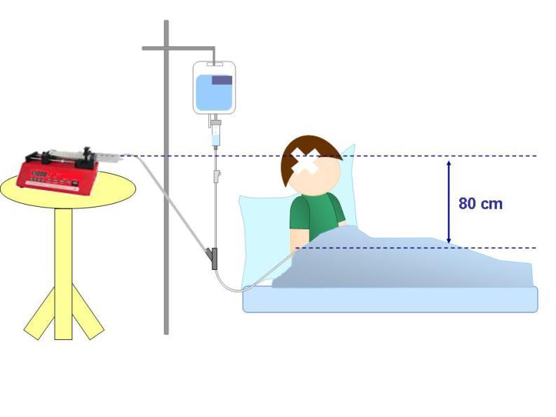Bonnes pratiques d 39 utilisation des valves de perfusion uni - Chambre implantable definition ...
