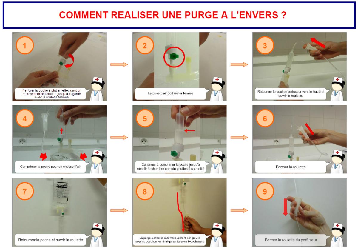Force et circulation d 39 un liquide perfusion limiter le - Chambre a catheter implantable ...